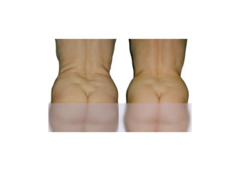 Slim down fat cells, firm the skin