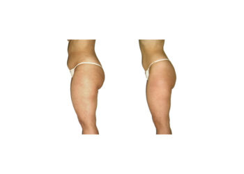 Slim down fat cells, smooth cellulite, firm the skin, resculpt the figure