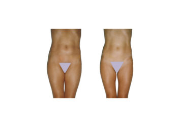 Smooth cellulite, firm the skin, resculpt the figure